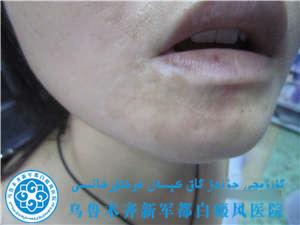 嘴角白斑女性/散发性