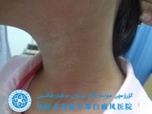李某/女性/散发型/颈部白斑