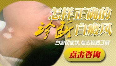 手部白癜风早期的症状有哪些