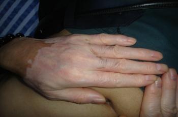 肢端型白癜风患者有什么症状表现